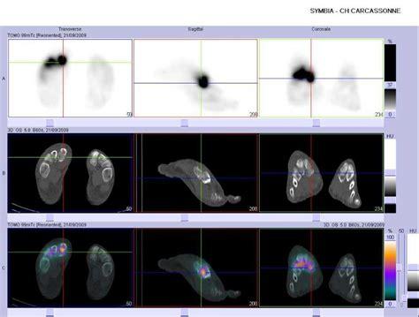fracture du cadre obturateur droit 28 images 04 fractures du cotyle 1 traumatismes pelviens