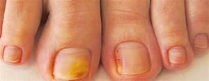 Лечение грибка ногтей лазером в самаре отзывы