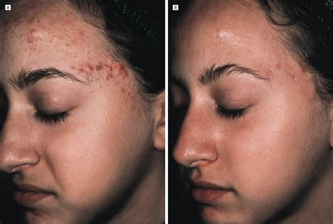 Successful Treatment Of Acne Vulgaris Using A New Method