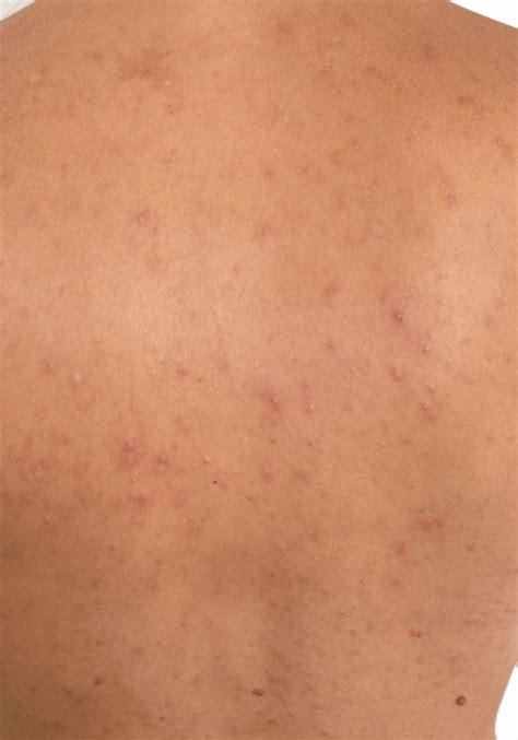 Zonneallergie behandelen: oorzaken oplossingen