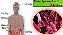 Janiye Cholera (Haija) Disease ke Lakshan, Karan aur Upchar