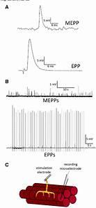 Pathophysiology Of Myasthenia Gravis Schematic Diagram