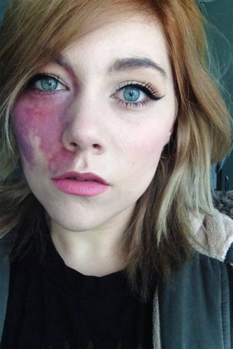 Woman Told She Was Too Ugly To Love Proudly Shows Facial Birthmark The Natural Black Opal