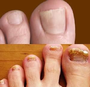 Meiyanqiong от грибка ногтей отзывы