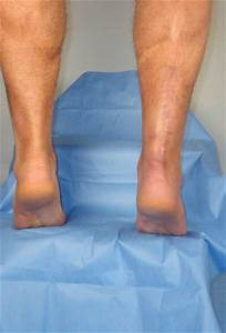 Surgical Repair Of Acute Achilles Tendon Rupture With An