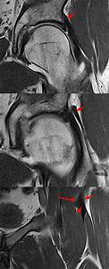 Mri Of Rectus Femoris    Quadriceps Injury