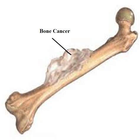 kreabel canap bone cancer related keywords bone cancer