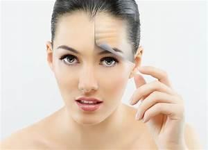 Аптечное средство от морщин вокруг глаз из аптеки