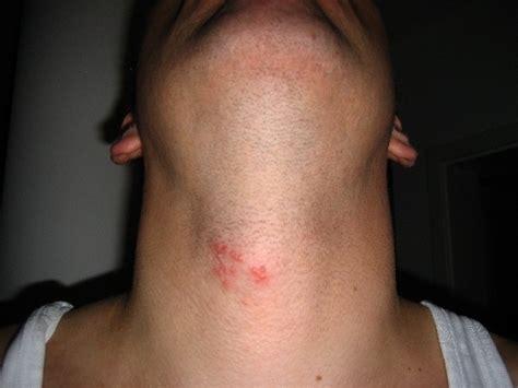 kopfschmerzen bei guertelrose