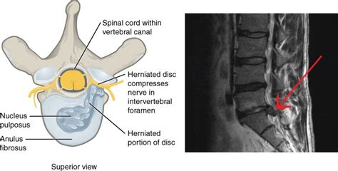 herniated  slipped disks  pain  bacteria healdove