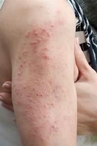 What is Dermatitis Herpetiformis? - Allergic Living Dermatitis