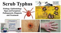 Scrub Typhus- Etiology, Epidemiology, Symptoms ...