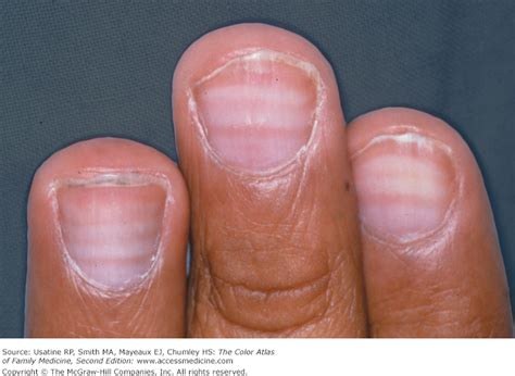 Do Pomskies Shed Fur by 100 Nail Bed Melanoma Nail Abnormalities A Day In