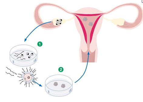 Rahim Wanita Subur Proses Bayi Tabung