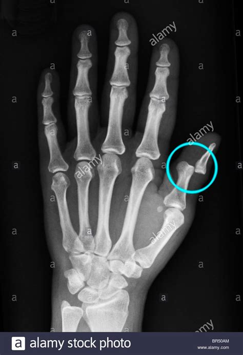 hand  ray    year  woman showing  dislocation