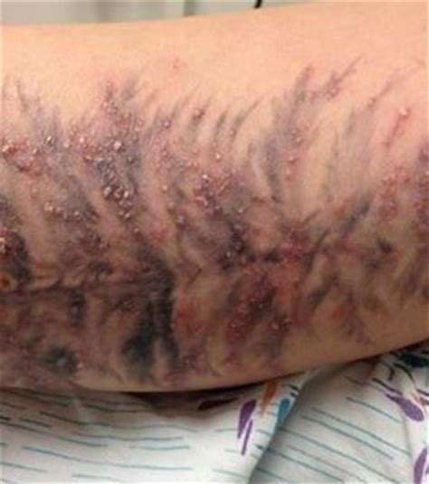 Can you get rid of psoriasis