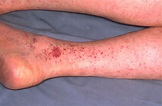Rocky Mountain Spotted Fever - STEP2/3 Infectious Disease ...