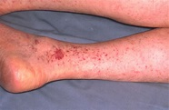 Rocky Mountain spotted fever. Causes, symptoms, treatment ...
