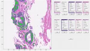 H U0026e Histology Color Normalization Instructions