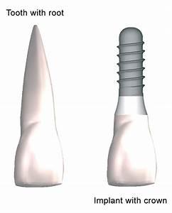 Procedures & Services   Coronado Dentistry