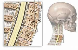 Остеохондроз пояснично-крестцового отдела позвоночника лечение бубновский