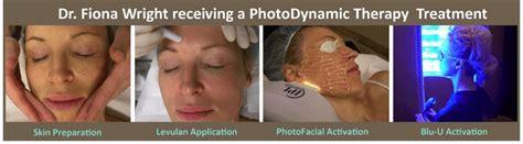 Photodynamic Therapy Plano, TX | PDT Frisco, TX | Acne
