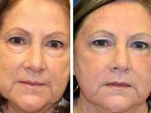 Как сделать макияж от морщин