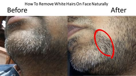 Treatment Of White Hairs On Face Permanently Haircut Woman Oval Face Haircuts Short Hair Guys In Paris Tobey Maguire Great Gatsby Tgif Bird Road Little Boy For Straight