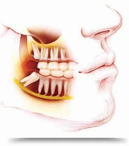 Symptome Dent De Sagesse : dents de sagesse ce qu 39 il faut savoir ~ Maxctalentgroup.com Avis de Voitures