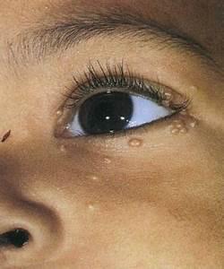 Лечение папилломы человека у детей