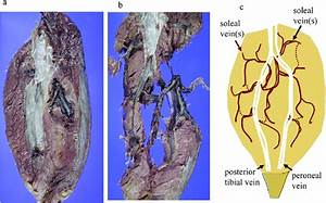 A Representative Autopsy Case Of Soleal Vein Thrombosis