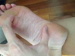 Средство от грибка ногтей мазь