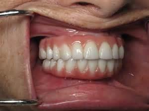Dental Implants Upper Teeth