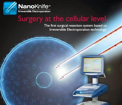 irreversible electroporation ire  nanoknife technology  provide cure  pancreatic cancer