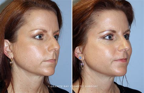 eyelid lift granite bay cosmetic surgery