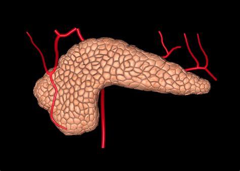 bauchspeicheldruesenkrebs pankreaskarzinom ursachen