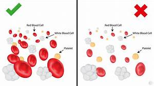 5 Signs You Have A Low Red Blood Cell Count