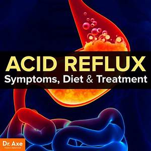 Acid Reflux Symptoms  Diet  U0026 Treatment