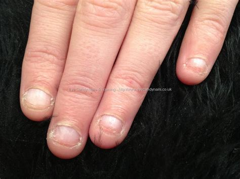 The Gallery For Bitten Nails Manicure