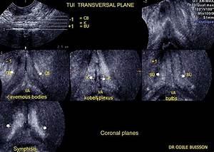 Echo Scan Of Human Vagina  The Triplanar 3