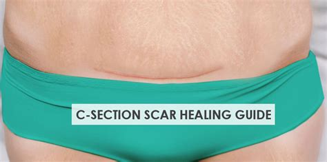 C Section Scar Recovery by C Section Scar Healing Care Guide Stork