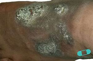 Online Dermatology - Neurodermatitis