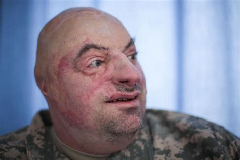 wounded soldier healing  helping  militarycom