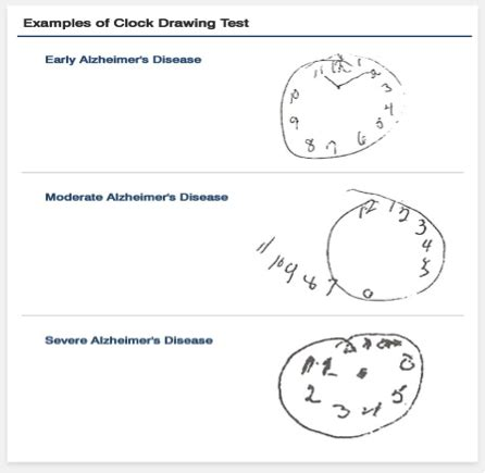 clock drawing test what does drawing clocks to do with driving cars