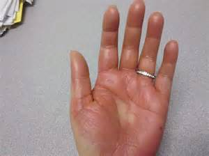 How to Manage Hand Foot Syndrome (HFS) Effectively? - Online Cancer ...  Leukemia Vitamin B6 (Pyridoxine)