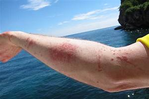 New Box Jellyfish Sting Spray Could Mean Fast Relief ...