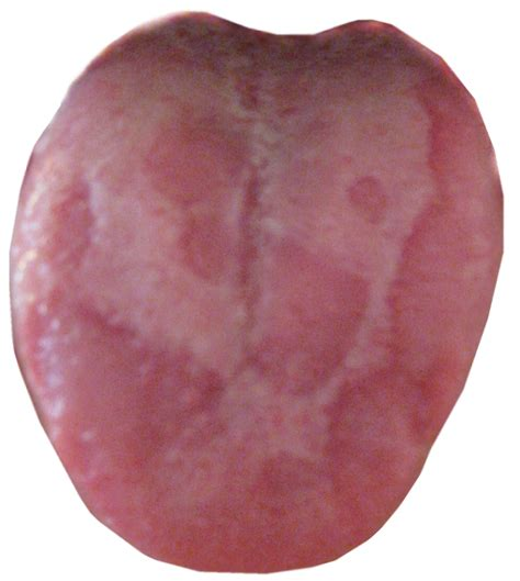 How To Eliminate Geographic Tongue Even If Youve Tried