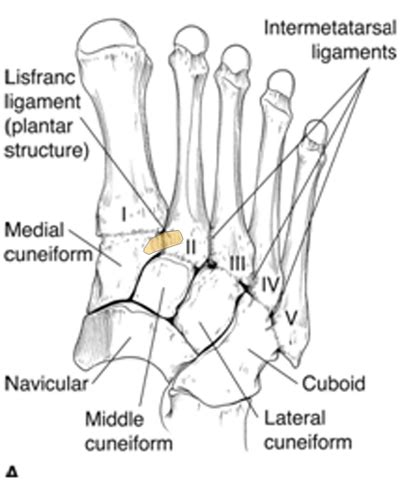 Motor vehicle and industrial accidents constitute the majority of lisfranc patients may not meet ottawa ankle/foot imaging rules. Lisfranc Injury - JUNIORBONES