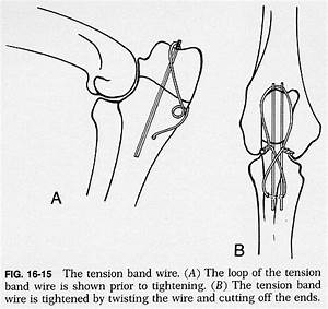Surgical procedures of leg3 for Tension band wiring