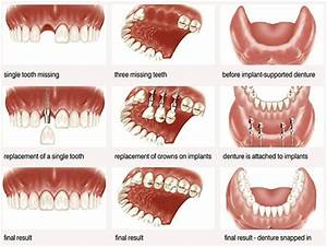 1000+ images about Implantology / Dental Implants on ...